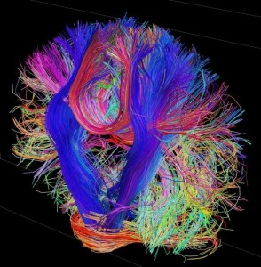 The Brain Circuitry being unraveled